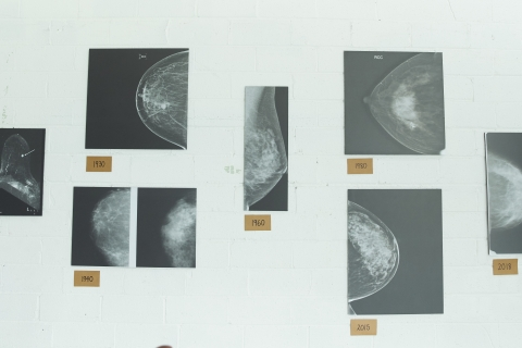 mammograms are peace of mind